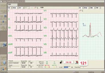 Belastungs-EKG, Ergonomie, Wiesbaden